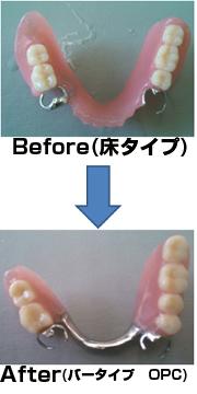 入れ歯の素材には保険適用で体に優しい「アクリルジェット」